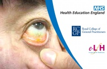 Eye Assessment and Examination