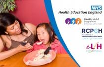 Feeding Children with Development Difficulties
