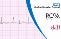 Management of Cardiogenic Shock