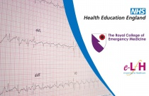 Management of STEMI and its Complications