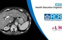 Liver: Cirrhosis and NASH