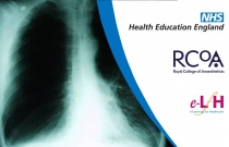 Chronic Pulmonary Obstructive Disease and Non-Invasive Ventilation