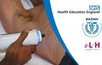 Hepatitis C: Natural History, Presentation and Investigation