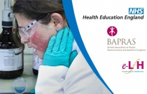 Initial Management of Chemical Burns