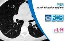 CT Anatomy: Pulmonary Lobule and Fissures