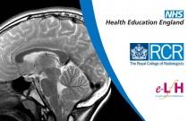 Imaging Neuroanatomy