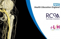 Lumbosacral Plexus, Nerve Supply to the Leg and Foot
