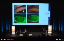 Traitement de l'œil sec : nouvelles cibles thérapeutiques - C.O.C. 2018 - AOF