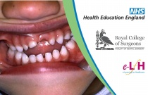 Assessment For Orthodontic Referral