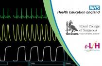 Cardiac Arrythmias