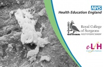 The Nature Of Root Surface Contamination