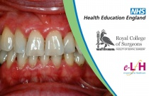 Supportive Periodontal Therapy