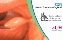 Assessment of Benign Soft Tissue Lesions of the Oral Cavity