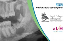 Cysts of the Oral Cavity: Bone Cysts