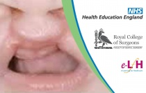Overview of Cleft Lip and Palate