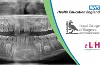 Abnormalities Of The Dentition