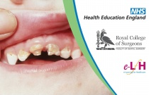Detrimental Effects Of Enforced Tooth Loss