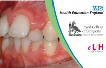 Index Of Orthodontic Treatment Need