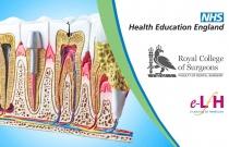 Endodontic Access