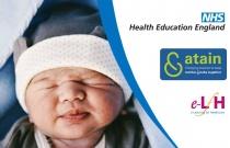 Management Of Term Newborn Babies With Hypoglycaemia