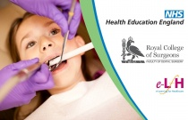 Vital Pulpotomy and Pulpectomy Technique In Primary Molars