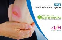 Falls Assessment and Management for Paramedics