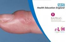 Finger Tip Infections