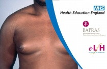 Aetiology and Investigation of Gynaecomastia