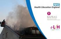 Management of Inhalation Injury