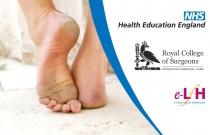 Lower Limb: Foot