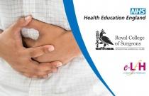 General Surgery Change in Bowel Habit