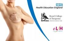 Breast Disease: Breast Pain