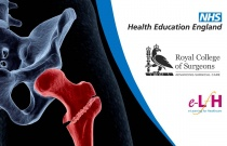 Fractures: Classification of Fractures