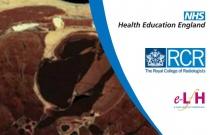 Cardiac MRI Anatomy and MRA