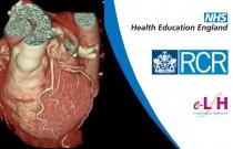 Coronary Artery Pathology
