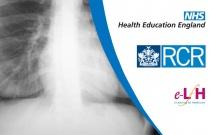 Diaphragm and Pulmonary Vessel Anatomy
