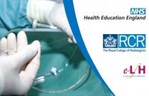 Gastrostomy Insertion