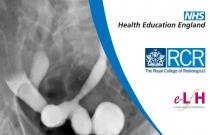 Fluoroscopic Investigations of the Genito-Urinary Tract