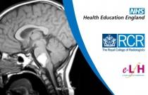 How to Interpret and Analyse Paediatric Cranial MRI