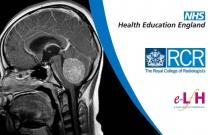 Infratentorial Brain Tumours