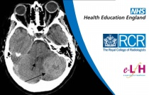 Intracranial Metastases: Imaging and Differential Diagnosis