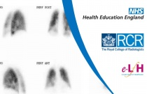 Interpretation of Ventilation Perfusion Studies: Normality