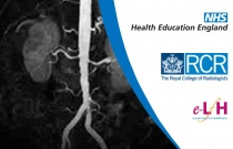 Diffusion and Perfusion MRI