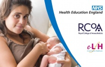Breastfeeding and Anaesthesia
