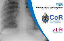 Image Interpretation - Abdominal and Thoracic Ultrasound: Lung Ultrasound