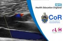 Image Interpretation - Vascular Ultrasound: Venous Insufficiency - Session 1