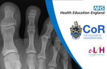 Image Interpretation - Adult Skeleton (X-ray): Foot - Session 3