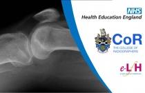 Image Interpretation - Adult Skeleton (X-ray): Knee - Session 3