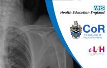Image Interpretation - Adult Skeleton (X-ray): Bones of the Thorax - Session 2