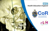 Image Interpretation - Adult Skeleton (X-ray): Facial Bones - Session 2